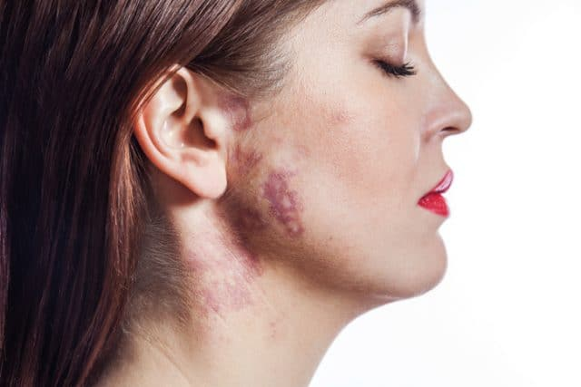 woman with port-wine stain (birthmark) on her face.