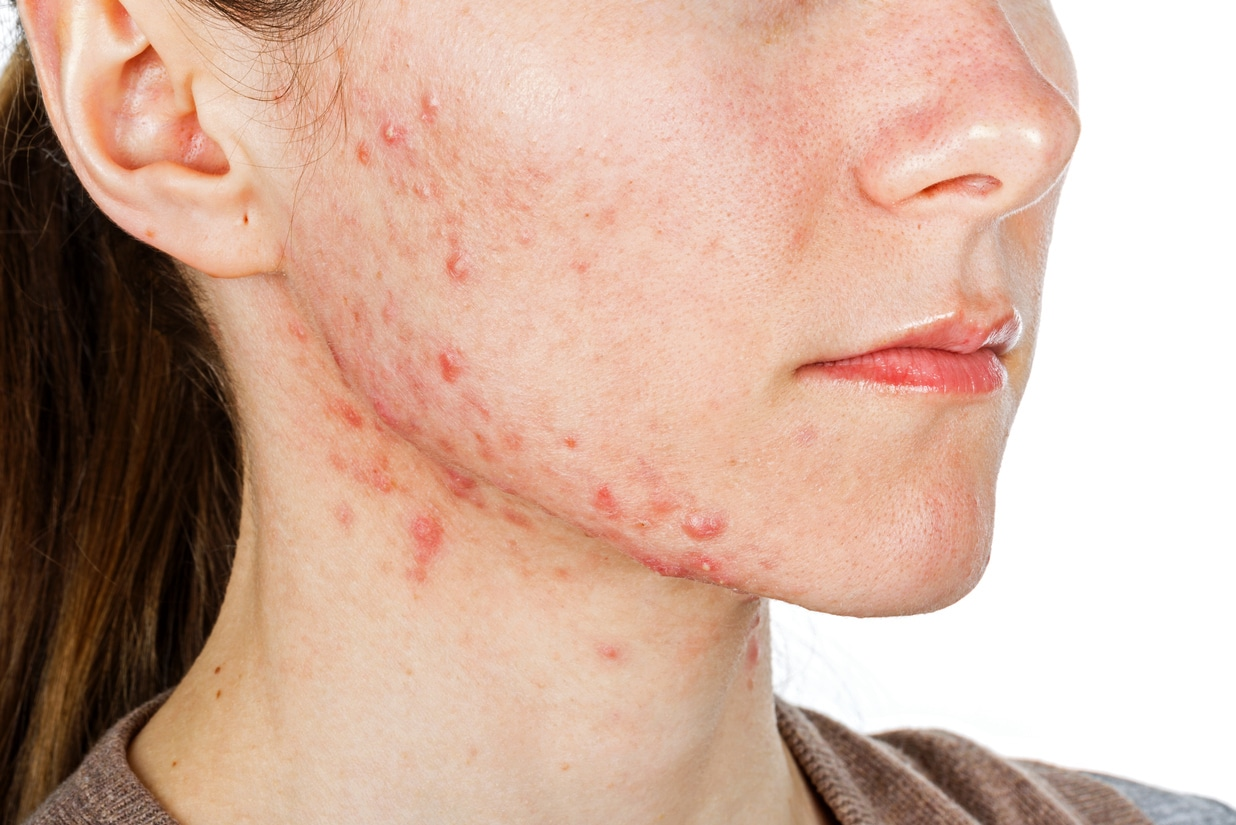Woman with acne breakout on her chin, neck, and cheeks